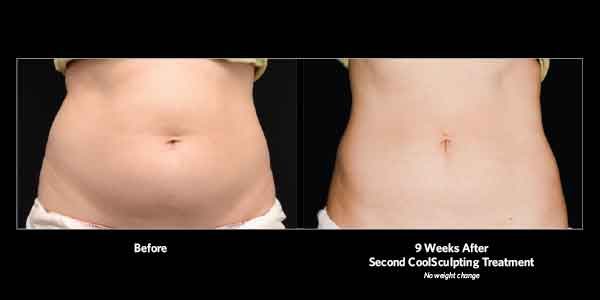 Avie-BA-CoolSculpting-2