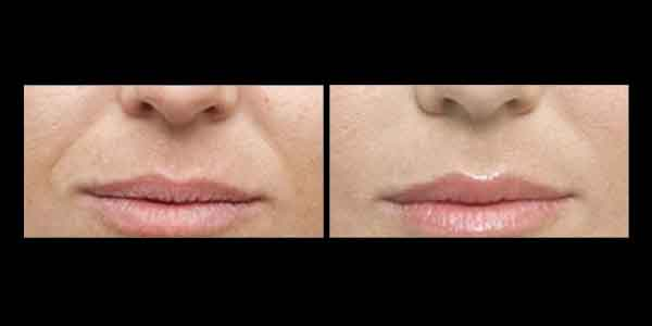 Juvederm Before and After, Wrinkles around mouth are diminished