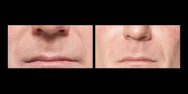 Juvederm Before and After, wrinkles around man's mouth and nose are diminished