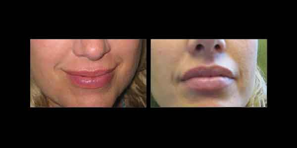 Juvederm Before and After showing a woman's lips become more plump
