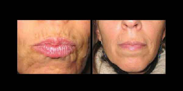 Juvederm Before and After showing a woman's revitalized, wrinkle-free lips