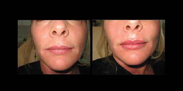 Juvederm Before and After, showing the reduction of wrinkles around the mouth