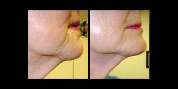 Before and After photo showing improvements to chin area