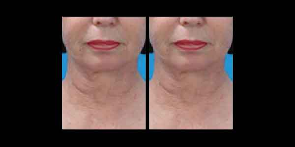 Before and After photo showing improvements around neck