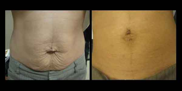 Before and After of tightened skin in abdomen, fixing saggy skin from weight loss