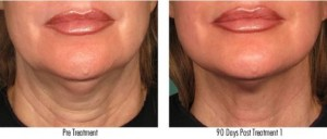 Ultherapy Before and After Leesburg Virginia Avie Medspa
