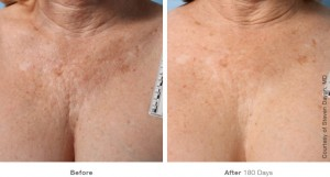 chest-ultherapy-avie-leesburg-virginia