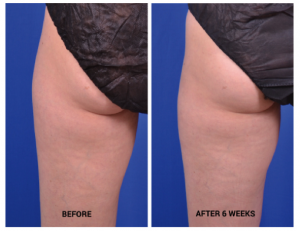 CoolSculpting Before and After in Leesburg VA at Avie MedSpa & Laser Center