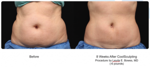 CoolSculpting, no surgery, no downtime treatment in Leesburg, VA at AVIE! Medspa