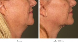 Ultherapy Before and After at Avie MedSpa in Leesburg, VA