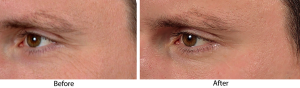 See the improvement! Before and after picture of combining micro therapy with Skin Medica's TNS Recovery Complex!