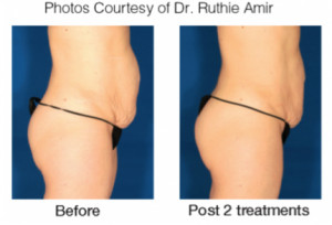 See the difference with VelaShape at AVIE! MedSpa and Laser Center in Leesburg, Virginia!