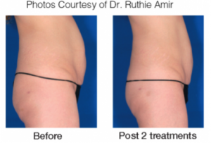 """Experience the """"latest and greatest"""" in body contouring with VelaShape at AVIE! MedSpa and Laser Center in Leesburg, Virginia!"""