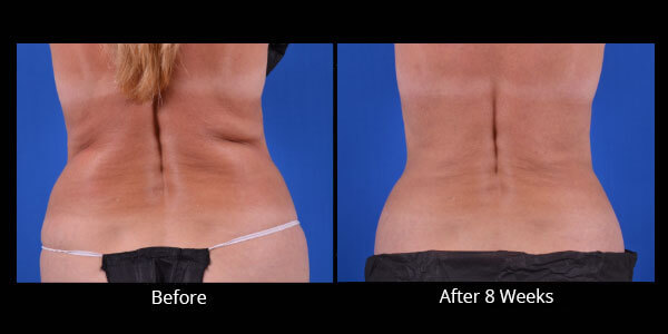 AVIE! Medspa CoolSculpting before and after pictures in Leesburg, VA.