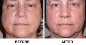 Before & After photo of an AVIE! BBL photofacial in Leesburg, VA.