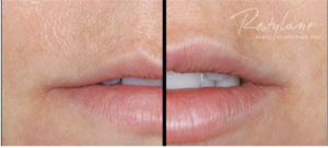 Restylane Silk before and after in Leesburg, VA at AVIE! Medspa.