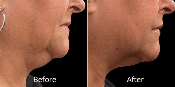 Before and After CoolSculpting photo showing reduced fat under neck