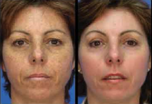 Before and After MicroLaserPeel treatment in Leesburg, VA at AVIE! Medspa and Laser Center.