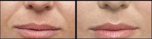 Before and After of dermal fillers for smile lines in Leesburg, VA at AVIE! Medspa and Laser Center.