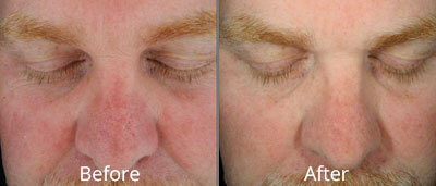 Before and After photos of Halo fractional laser resurfacing at AVIE Medspa and Laser Center 9
