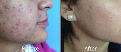 Before and After photos of Halo fractional laser resurfacing at AVIE Medspa and Laser Center 2