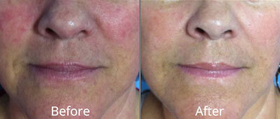 Before and After photos of Halo fractional laser resurfacing at AVIE Medspa and Laser Center 1