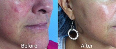 Before and After photos of Halo fractional laser resurfacing at AVIE Medspa and Laser Center 8