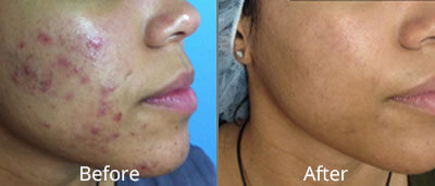 Before and After photos of Halo fractional laser resurfacing at AVIE Medspa and Laser Center 7