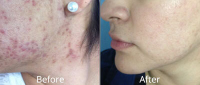 Before and After photos of Halo fractional laser resurfacing at AVIE Medspa and Laser Center 5