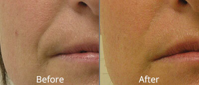 Before and After photos of Halo fractional laser resurfacing at AVIE Medspa and Laser Center 4