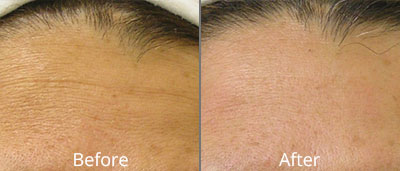 Before and After photos of Halo fractional laser resurfacing at AVIE Medspa and Laser Center 3