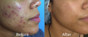 HydraFacial at AVIE! Medspa in Leesburg, VA can improve the appearance of acne!