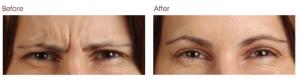 botox-before-and-after-avie-medspa-leesburg