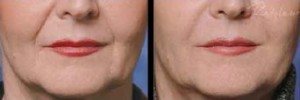 Reduce fine lines around the lips with lip rejuvenation treatment in Leesburg, VA!