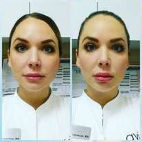 Experience beautiful results with facial contouring in Leesburg!