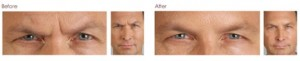 Botox in Leesburg provides dynamic, smooth results!