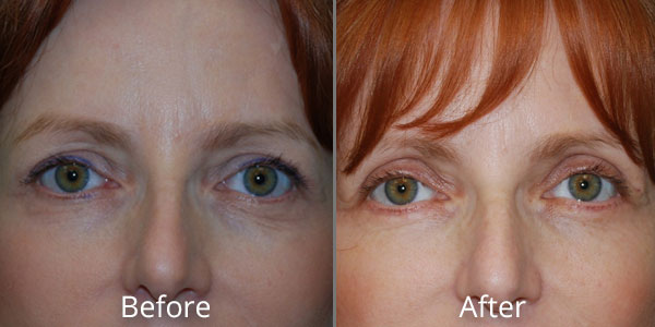 Before and After photos of Eyelid Lifts at AVIE Medspa and Laser Center