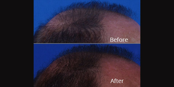 Before and after photos of hair restoration at Avie Medspa and Laser Center