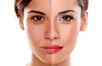 Ultherapy is all the rage for its ability to tighten and lift the skin on your face, neck, chin, jawline, and brow.