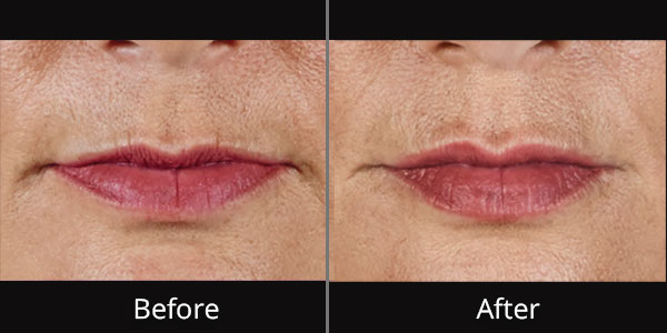 Before and After photos of Volbella at AVIE Medspa and Laser Center