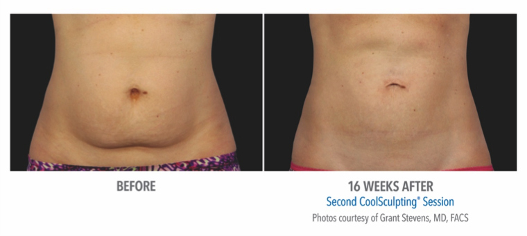 If you haven't already heard, FDA-cleared CoolSculpting is one of our most popular treatments!