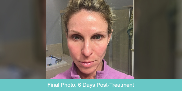 Avie Post Procedure Photo Day 6