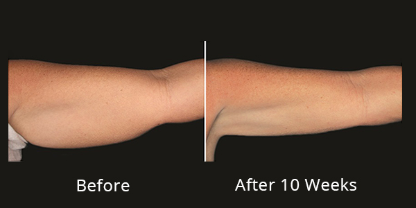 B&A Photos of CoolSculpting under-arms