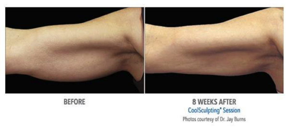 We've always loved CoolSculpting® because we see the impressive results it brings our clients day after day.