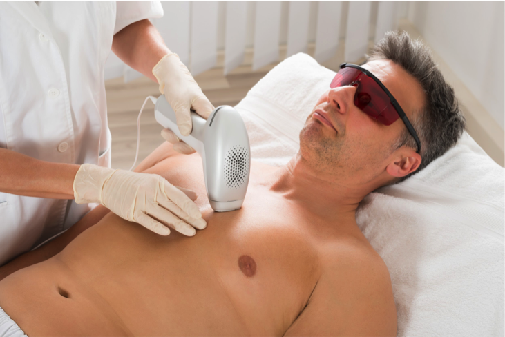 Laser hair removal is ideal in the cooler months.