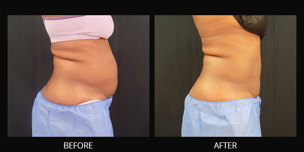 B&A Photos Of CoolSculpting Avie Medspa